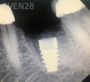 Andrew-Finley-Dental-Implants-after-1