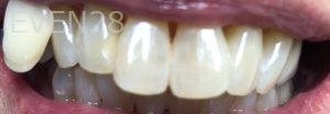 Andrew-Finley-Teeth-Whitening-after-1
