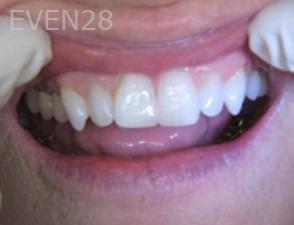 Anthony-Rassouli-Dental-Bonding-after-1