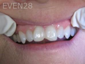 Anthony-Rassouli-Dental-Bonding-before-1