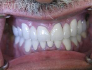 Anthony-Rassouli-Dental-Bridge-after-2