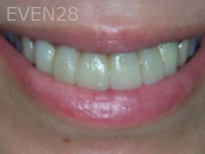 Anthony-Rassouli-Dental-Bridge-before-1