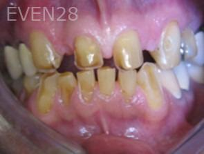 Anthony-Rassouli-Dental-Bridge-before-2