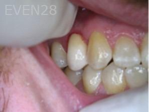 Anthony-Rassouli-Dental-Implants-after-1