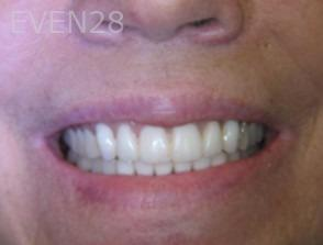 Anthony-Rassouli-Dentures-after-1