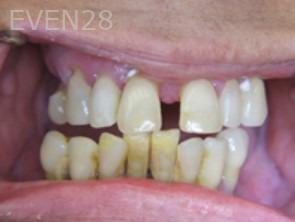 Anthony-Rassouli-Dentures-before-1