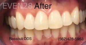 Anthony-Rassouli-Invisalign-Clear-Aligners-after-1