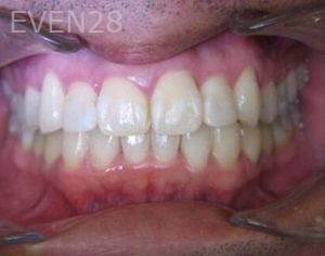 Anthony-Rassouli-Invisalign-Clear-Aligners-after-2