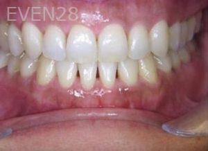 Anthony-Rassouli-Invisalign-Clear-Aligners-after-3