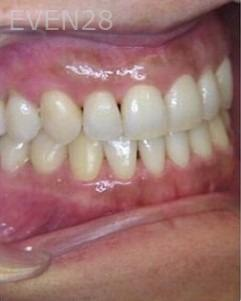 Anthony-Rassouli-Invisalign-Clear-Aligners-after-3b