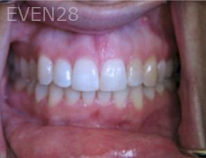 Anthony-Rassouli-Invisalign-Clear-Aligners-after-5