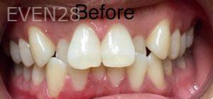 Anthony-Rassouli-Invisalign-Clear-Aligners-before-1