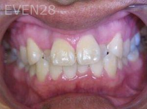Anthony-Rassouli-Invisalign-Clear-Aligners-before-2