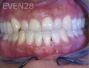Anthony-Rassouli-Invisalign-Clear-Aligners-before-3