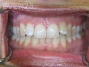 Anthony-Rassouli-Invisalign-Clear-Aligners-before-5