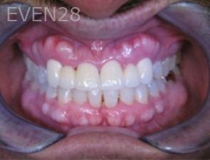 Anthony-Rassouli-Smile-Makeover-after-2