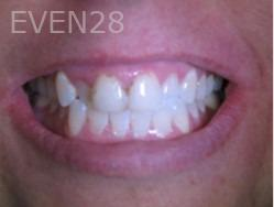 Anthony-Rassouli-Smile-Makeover-before-1