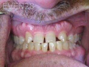 Anthony-Rassouli-Smile-Makeover-before-2