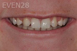 Aria-Irvani-Dental-Bonding-before-1
