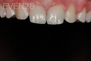 Aria-Irvani-Dental-Bonding-before-1b