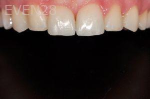 Aria-Irvani-Dental-Bonding-after-1b