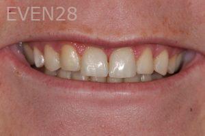 Aria-Irvani-Dental-Bonding-after-1