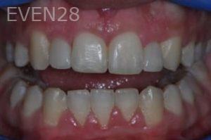 Aria-Irvani-Orthodontic-Braces-after-1