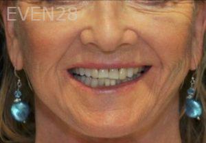 Aria-Irvani-Smile-Makeover-before-1