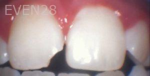 Arianna-Martinez-Dental-Bonding-before-1