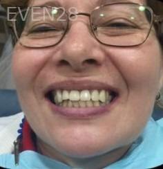 Arianna-Martinez-Dental-Crowns-after-1