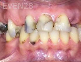 Arianna-Martinez-Dental-Crowns-before-1