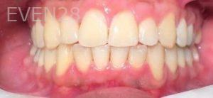 Arianna-Martinez-Invisalign-clear-aligners-after-1