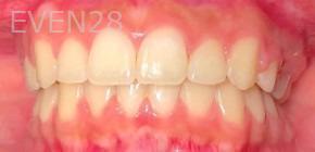 Arianna-Martinez-Orthodontic-Braces-after-1b