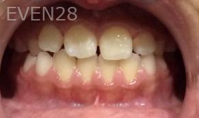 Arianna-Martinez-Orthodontic-Braces-after-2b