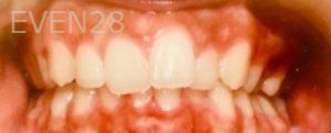 Arianna-Martinez-Orthodontic-Braces-before-1b
