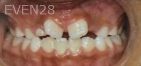 Arianna-Martinez-Orthodontic-Braces-before-2b