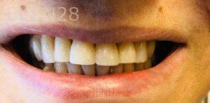 Armine-Nazarian-Dental-Bonding-after-1