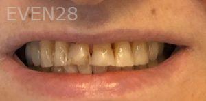Armine-Nazarian-Dental-Bonding-before-1