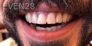 Armine-Nazarian-Dental-Cleaning-after-1