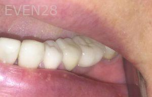 Armine-Nazarian-Dental-Crowns-after-1