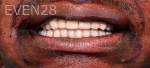 Armine-Nazarian-Full-Mouth-Rehabilitation-after-1