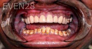 Armine-Nazarian-Full-Mouth-Rehabilitation-before-1