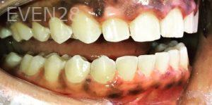 Armine-Nazarian-Invisalign-Clear-Aligners-after-1