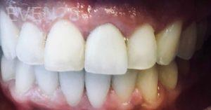 Armine-Nazarian-Invisalign-Clear-Aligners-after-2