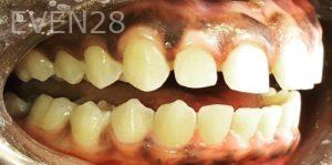 Armine-Nazarian-Invisalign-Clear-Aligners-before-1