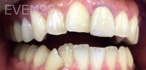 Armine-Nazarian-Invisalign-Clear-Aligners-before-2