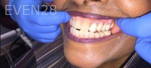 Armine-Nazarian-Partial-Dentures-after-1