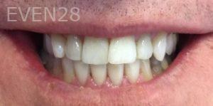 Armine-Nazarian-Smile-Makeover-after-1