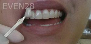 Bijan-Afar-Teeth-Whitening-after-1