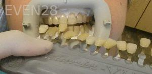 Bijan-Afar-Teeth-Whitening-before-1